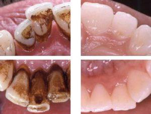 Mundhygiene vorher und nacher