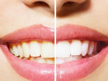 Mundhygiene Vorher/Nachher Frau geteilte Ansicht