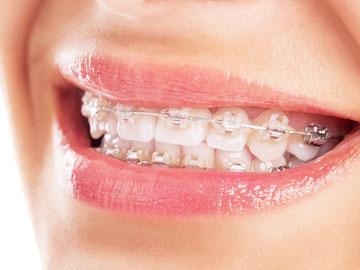 Kunststoff Brackets Zahnspange