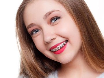 Metall Brackets Zahnspange Kinder