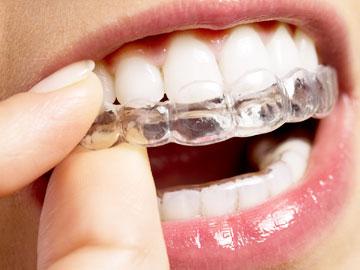 Unsichtbare Zahnspange im Detail herausnehmbar