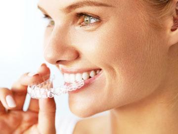 Unsichtbare Zahnspange bei Frau herausgenommen