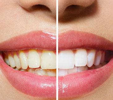 Zähne bleichen vorher nachher