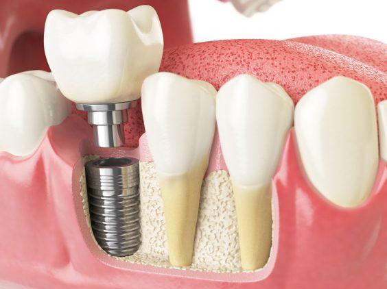 Zahnimplantat im Detail Schemadarstellung