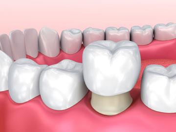 Zahnkrone Behandlung Schema