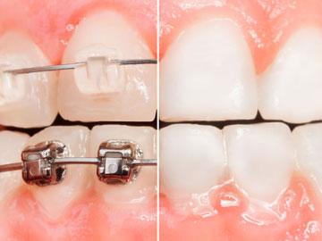 Zahnspange Brackets vorher nachher Ansicht